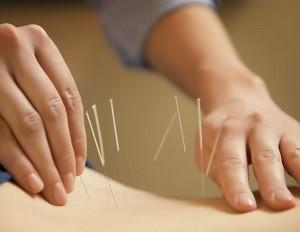 Acupuncture-300x232