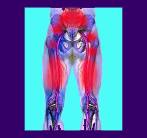 back-pain-hamstrings-1.jpg.pagespeed.ce.LyQuOtIpYJ