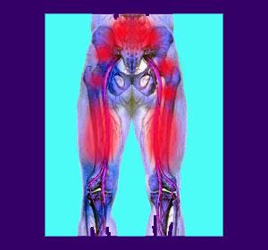 back-pain-hamstrings-1.jpg.pagespeed.ce.LyQuOtIpYJ